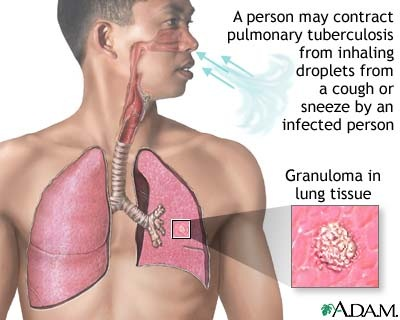 tuberculosis-of-the-lungs
